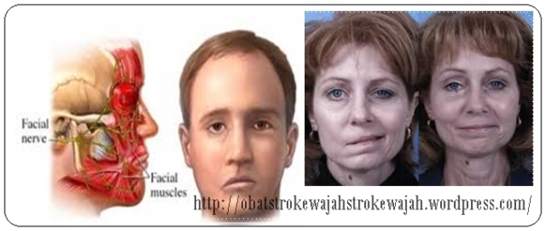 obat stroke wajah